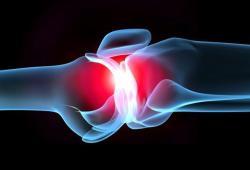 Враги суставов. Часть 1 - артрит