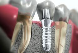 Имплантация зубов: зачем она нужна?