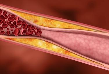 Ученые выяснили, в каком случае холестерин не опасен для сердца