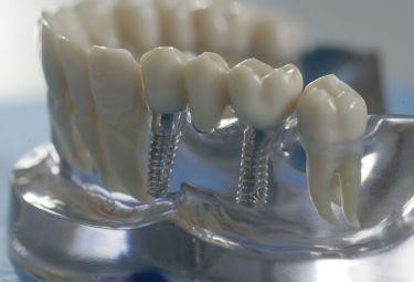 Особенности зубного протезирования