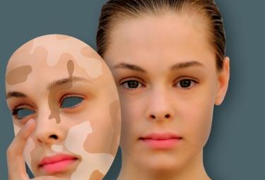 Причины и основные методы лечения витилиго