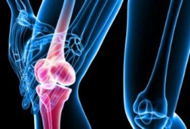 Ревматоидный артрит: причины, диагностика, лечение