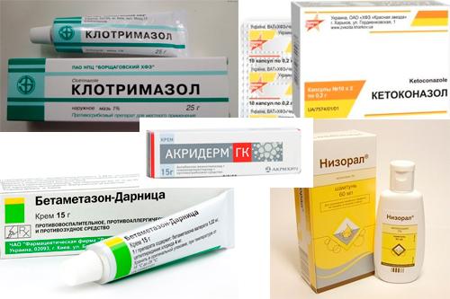 Себорейный дерматит: причины, симптомы, лечение