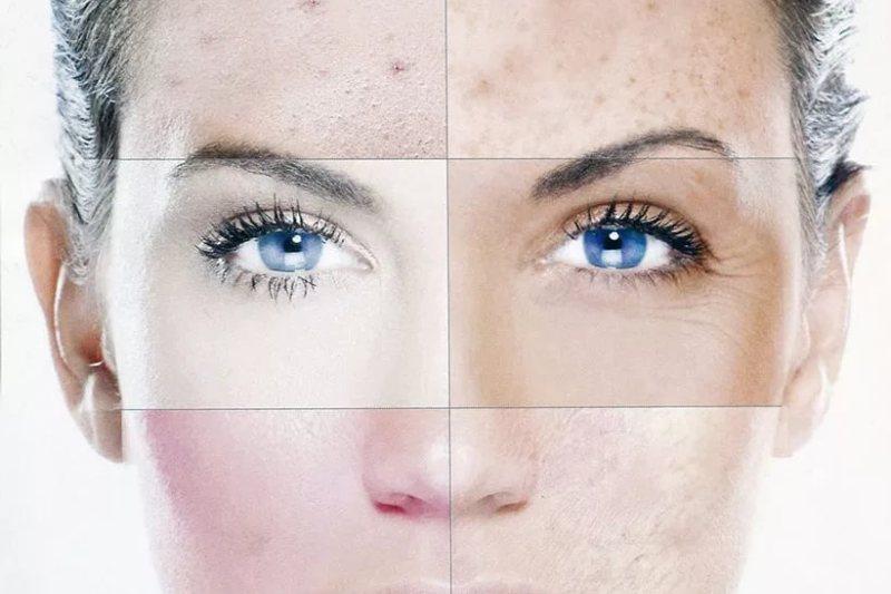 Основные типы кожи: особенности и уход