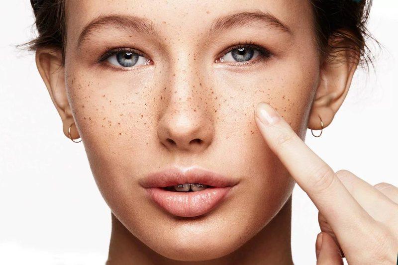 Салонные процедуры по удалению пигментации на лице